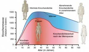 Osteoporose: Verlauf der Knochendichte mit zunehmendem Alter