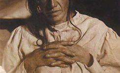 Erste Alzheimer-Patientin: Auguste Deter