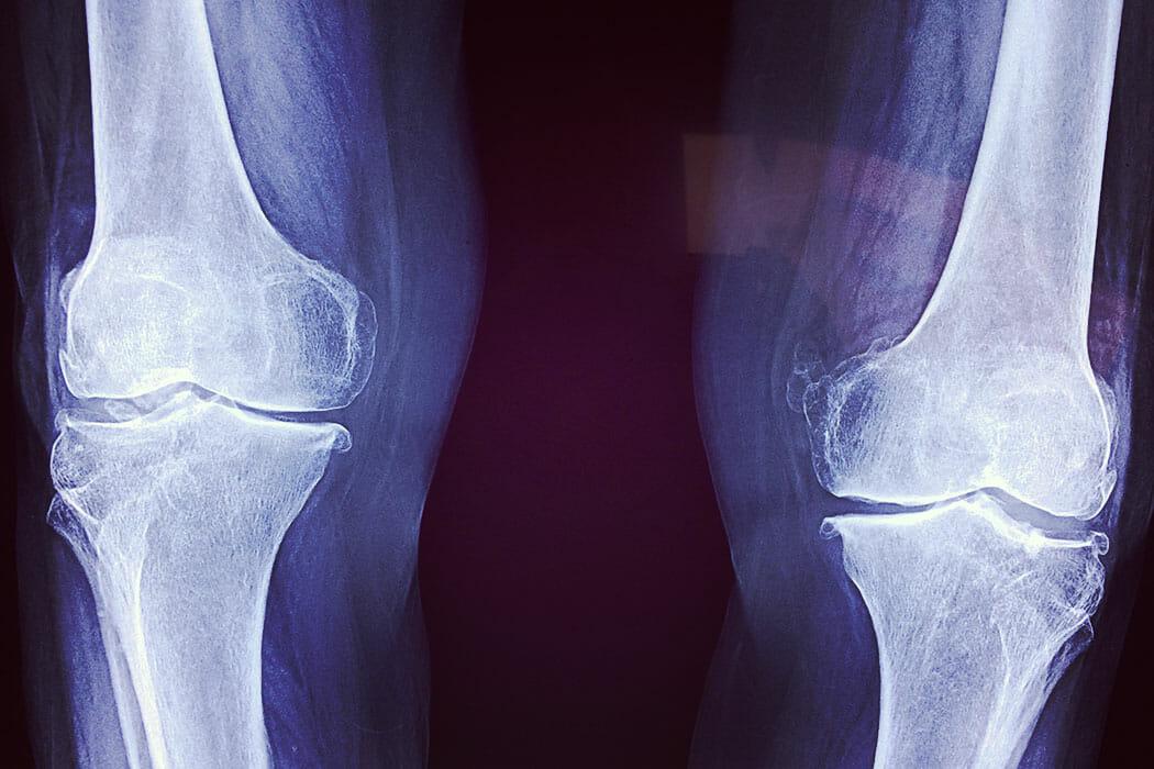 Röntgenbild von Knien